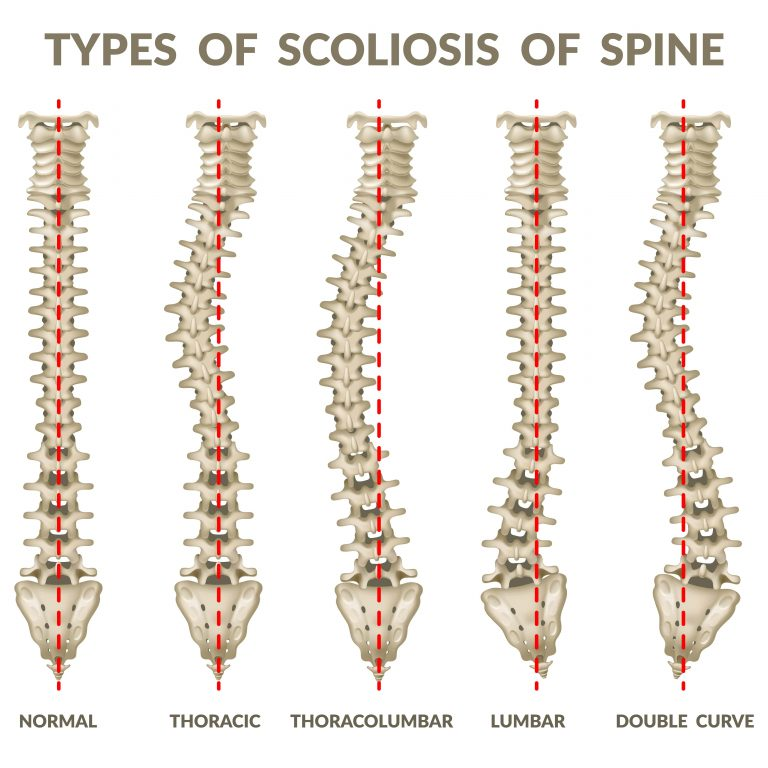 Scoliosis Types help chiropractors who treat scoliosis