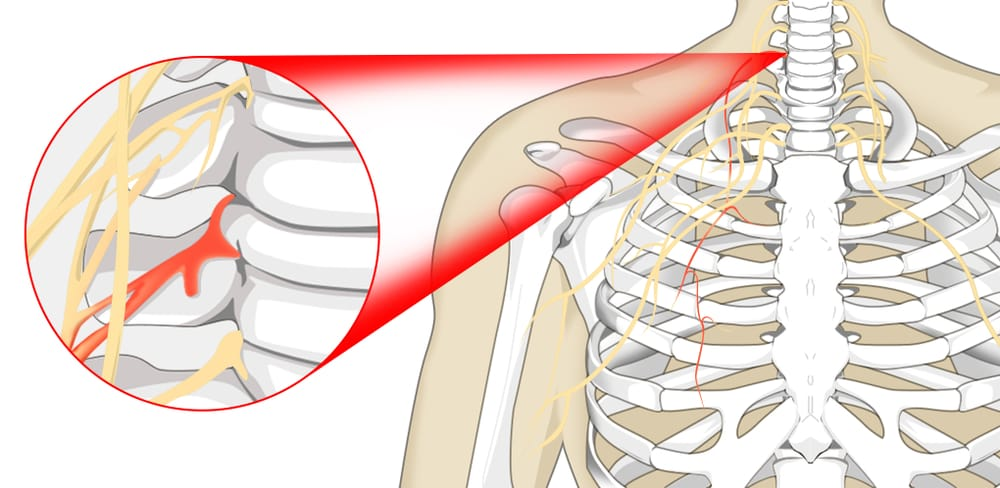 Pinched Nerve chart chiropractor