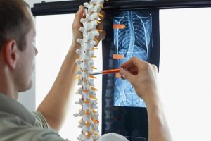 Chiropractor in Hollywood treats radiculitis in patients with pain in their spine