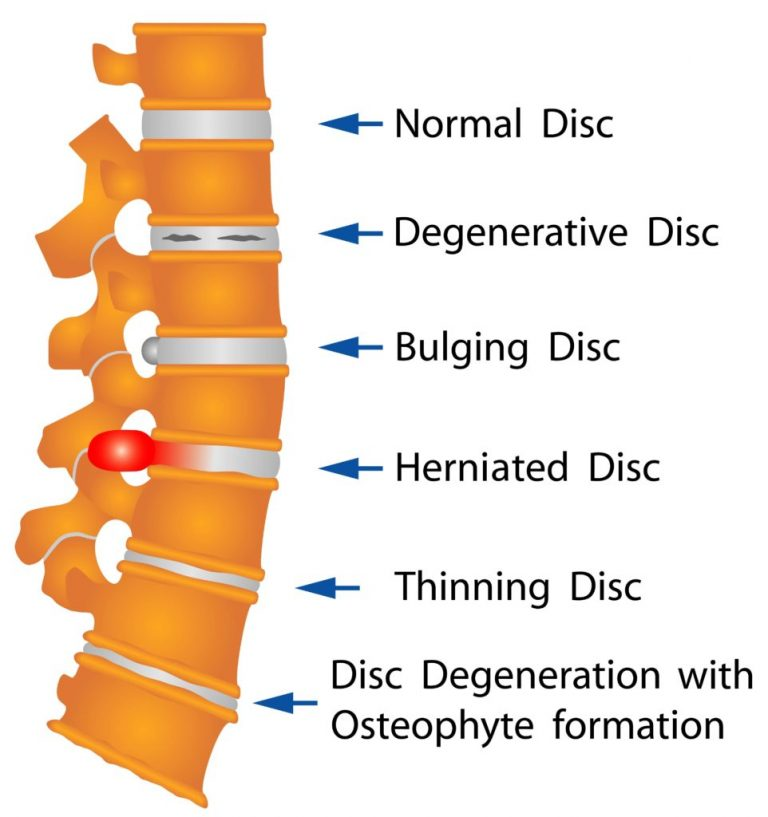 Herniated Disc Doctor Diagram discusses bulging discs, slipped discs and more.